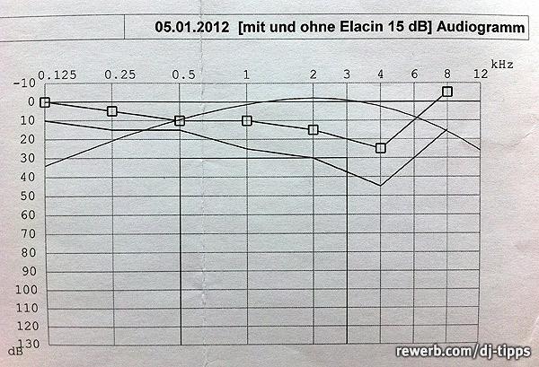 Hörkurve mit DJ-Gehörschutz, Audiogramm und Kontrollmessung