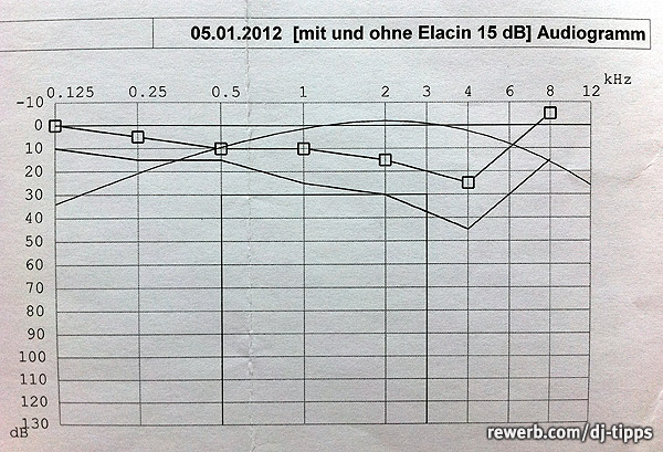 Tonaudiometrie, Hörtest, Dezibel-Skala